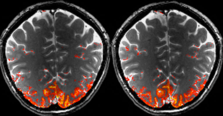 Caption: Activation of the visual cortex by presentation of a changing checkerboard pattern in humans measured at 9.4T. The red-labeled activation is based on a new approach (balanced steady state free precession) which allows an improved detection of the vascular response of cortical micro vessels. Photo: Max Planck Institute for Biological Cybernetics